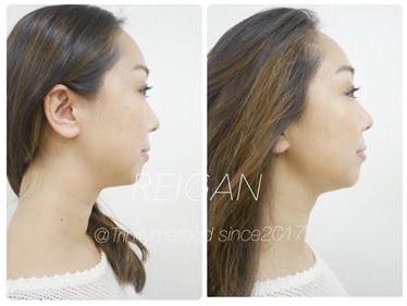 大阪の小顔矯正スクールは日本戻顔美容協会