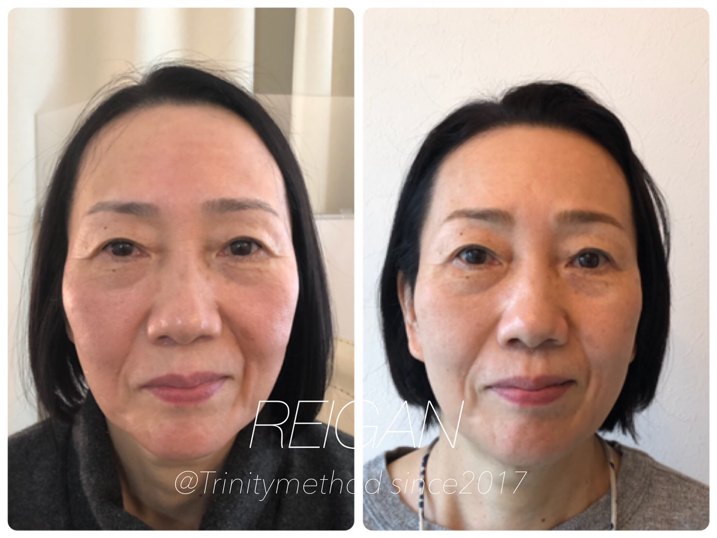 大阪の小顔矯正を習うなら日本戻顔美容協会