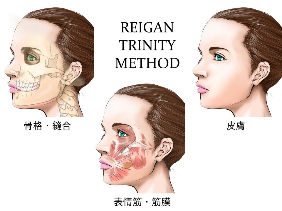 戻顔テクニックは、とても安全な小顔矯正です。